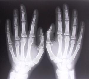 xray-of-hands-1526780-639x574